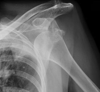 La lussazione di una spalla messa in evidenza dalla radiografia